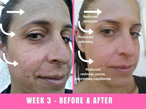 led light therapy before and after pictures we tried the project e led mask for 30 days