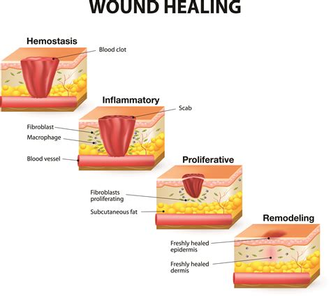 how to treat wounds how wounds heal the 4 phases of wound healing shield healthcare