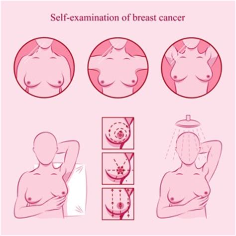 self breast diagram why a breast cancer is so important