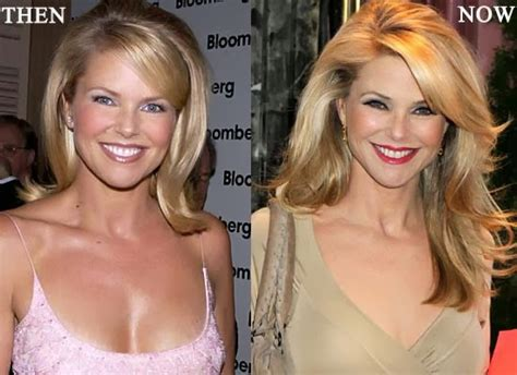 Christie Brinkley Gets Emergency Surgery by Christie Brinkley Plastic Surgery Before And After Breast