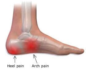 plantar fasciitis diagram remedy for plantar fasciitis before you try any surgery by