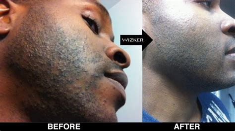 how to remove a hair bump from a womens private for men 5 ways to prevent and treat razor burn fashion
