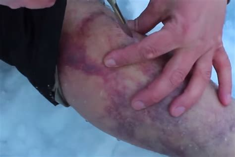 hematoma after c section field expedient surgery recoil
