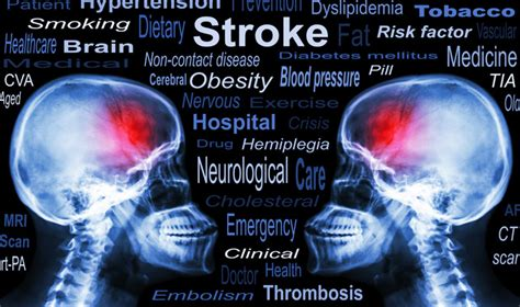 stroke call 911 clot buster for stroke books stroke study press office newcastle