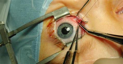 Obat Tradisional Katarak Ringan tips perawatan mata pasca operasi katarak info kesehatan