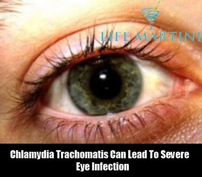 Light Red Discharge Common Symptoms Of Chlamydia How To Identify The Signs