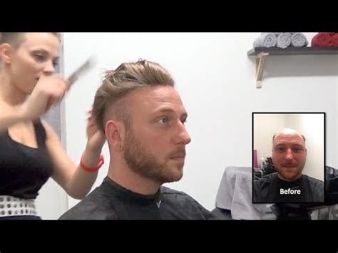best mens hair pieces chicago hair replacement fitting video dan hair loss baldness