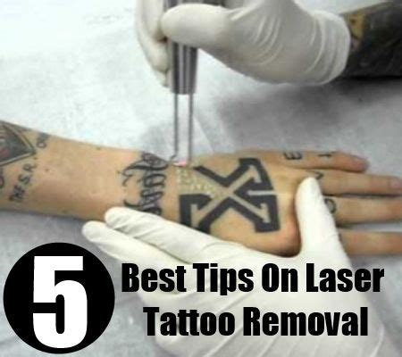 72 best laser removal virginia images on