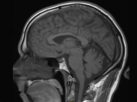 contrast agents for mri experimental methods new developments in nmr books gadolinium may remain in brain after contrast mri