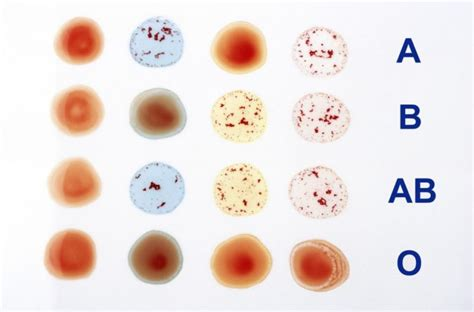 Serum Tes Golongan Darah jenis golongan darah pada manusia model terbaru 2013