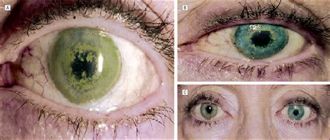 corneal tattooing phototherapeutic keratectomy for treatment of term