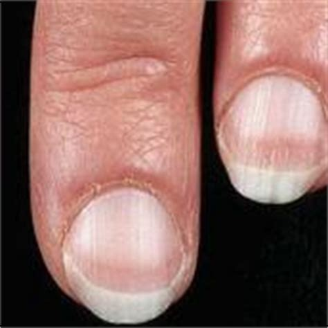pale nail beds pale white nails nail health fingernail problems