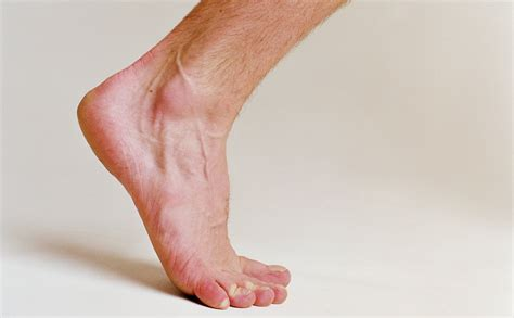ask well healing plantar fasciitis the new york times