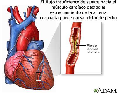 banyak pattern meaning espasmo de las arterias coronarias medlineplus