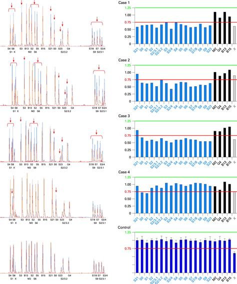 Contribution Of Pten Large Rearrangements In Cowden Disease A Multiplex Lifiable Probe Expand Template Pcr System Roche