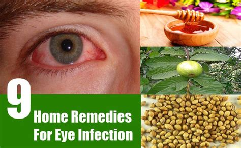 9 home remedies for eye infection search home remedy