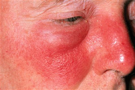 protein h streptococcus pyogenes bacterial skin infections causes types and treatments