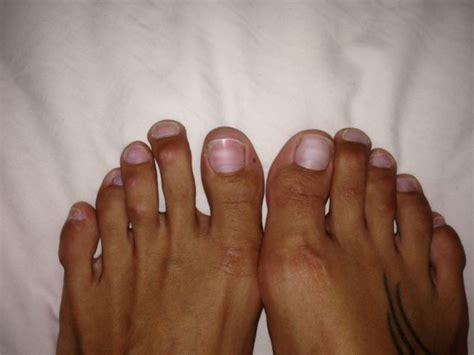 yandy tattoo on her finger nova tend 234 ncia mulheres passam por cirurgia para