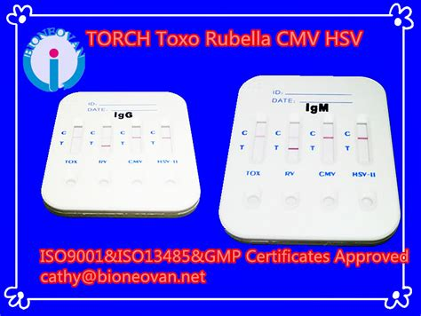test toxoplasmosi blood testing equipment torch toxo rv cmv hsv 2 4