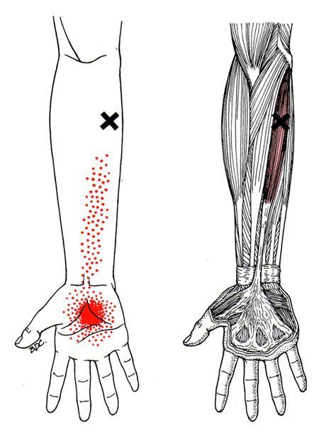 elbow tattoo pain level forearm pain diagram jaw pain diagram elsavadorla