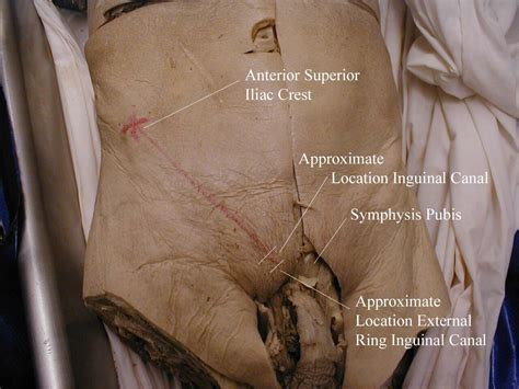 inguinal hernia type a title for your page here