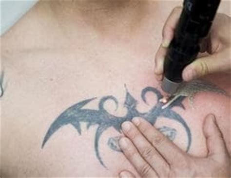 chest tattoo removal before after laser removal before a cover up is it worth