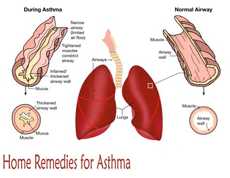 Home Remedies For Asthma Cough At by Home Remedies For Asthma Cough At Home Remedies For