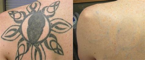 salt tattoo removal before and after removal before and after pictures blink