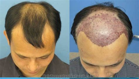 permanent head hair without surgery things to consider before having hair transplant surgery