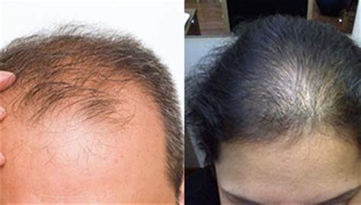 male pattern hair loss female hair loss forum 187 hair loss forms