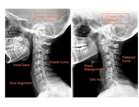 How To Detox From Xray by Ignoring Whiplash Is A Costly Mistakeinnova Clinic