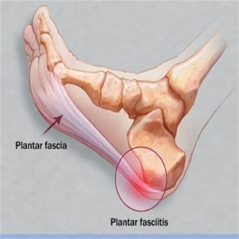 How To Cure Planters Fasciitis by Effective Cures For Plantar Fasciitis How To