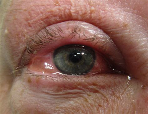 pink eye conjunctivitis definition what is