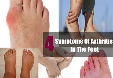 arthritis symptoms five common symptoms of arthritis in the tips to identify symptoms of arthritis