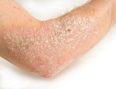 Obat Gatal Eksim Kering obat untuk penyakit eksim kering dermatitis alami paling