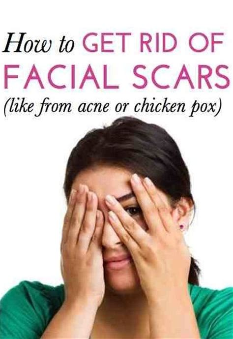 Detox To Get Rid Of Acne by 60 Best Images About Rodan Fields Tips And Tricks On