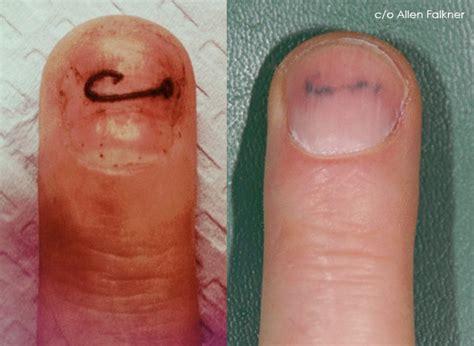 fingernail tattoos hook nail