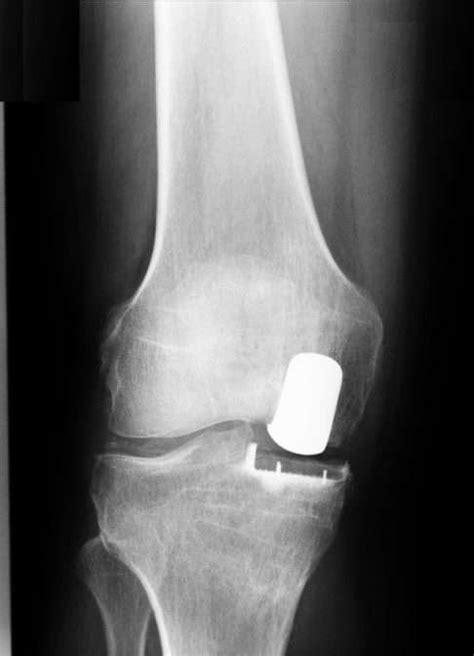 Knieteilprothese und Hemicap: Teilersatz des Kniegelenks