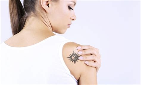 tattoo removal nyc groupon botox juvederm doctor up to 85 off new york ny