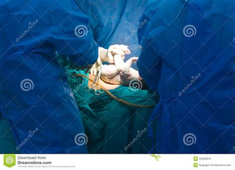 being sterilised during c section new baby being born during cesarean section stock images