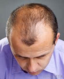 haircuts for balding crown is my crown thinning short hairstyle 2013