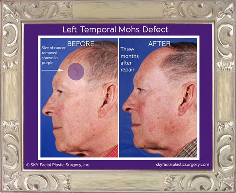reconstruction after mohs surgery books mohs reconstruction cosmetic surgery in san diego sky