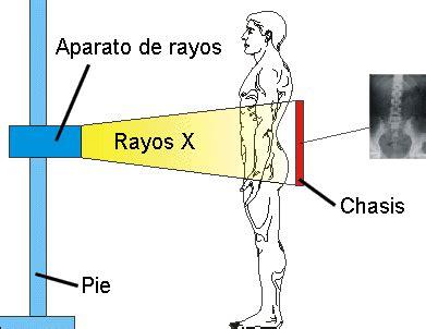 imagenes de rayos x animadas los rayos x monografias com