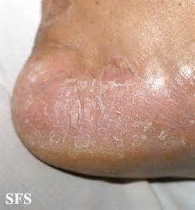 peeling skin problems pictures and causes healthhype