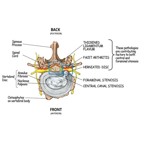 spinal stenosis diagram lumbar disc diagram lumbar wiring spinal block diagram