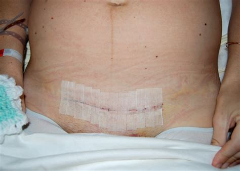 c section scar massage after c section support c section recovery and managing