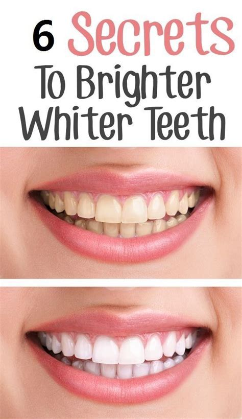 5 Tips For Whiter Teeth by 84 Best Images About Quot To Quot On Things