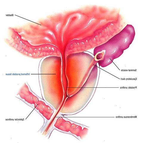 alimentazione per prostata infiammata prostatite urologo e andrologo verona e pisa toscana
