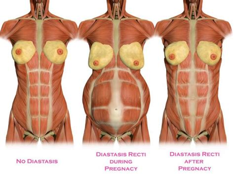 rectal pain after c section t 233 cnica tupler y otros m 233 todos para corregir la di 225 stasis