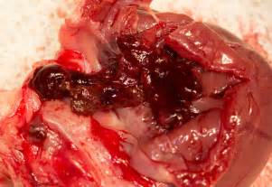 Menstrual clots related keywords amp suggestions menstrual clots long